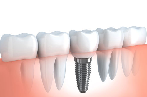 Could You Restore Your Smile With Dental Implants? [quiz]